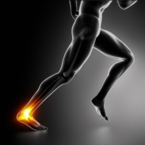 15563815 - sports ankle and achilles heel injury concept